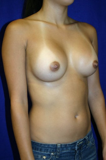 Breast Augmentation  347051
