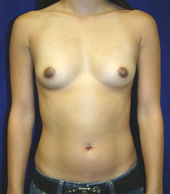Breast Augmentation  before 347051
