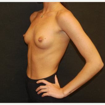 18-24 year old woman treated with Breast Implants before 3576197