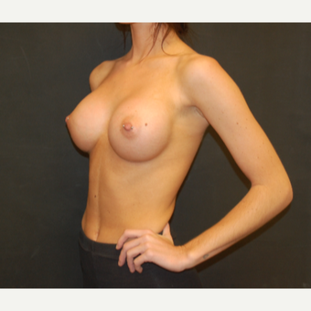 18-24 year old woman treated with Breast Implants after 3576197