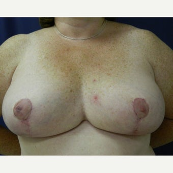 55-64 year old woman treated with Breast Reduction after 1894988