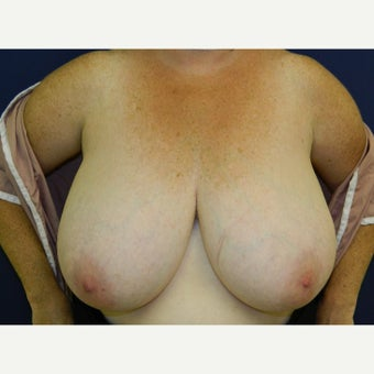 55-64 year old woman treated with Breast Reduction before 1894988