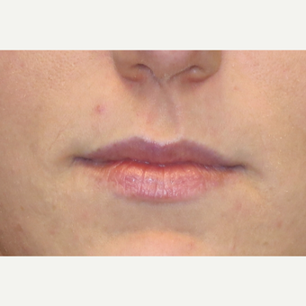 25-34 year old woman treated with Lip Augmentation before 3502416