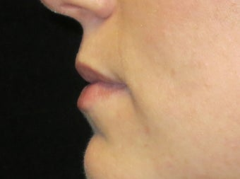 25-34 year old woman treated with Lip Augmentation 3502416