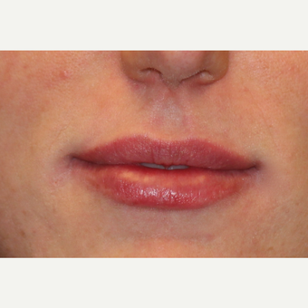 25-34 year old woman treated with Lip Augmentation after 3502416