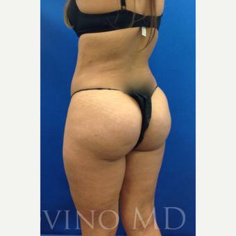 35 year old woman treated with Brazilian Butt Lift after 2243018