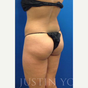 35 year old woman treated with Brazilian Butt Lift before 2243018