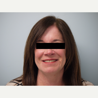 52-year-old woman treated with Sculptra