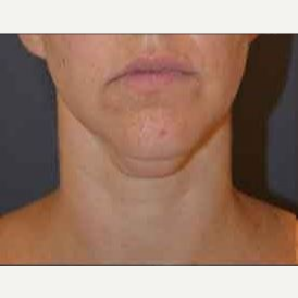 35-44 year old woman treated with Kybella before 3482794