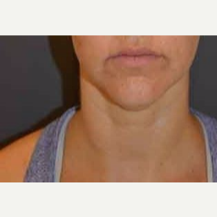 35-44 year old woman treated with Kybella after 3482794