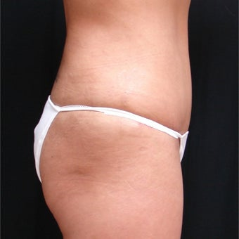 45-54 year old woman treated with Mini Tummy Tuck 1944537