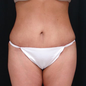 45-54 year old woman treated with Mini Tummy Tuck after 1944537