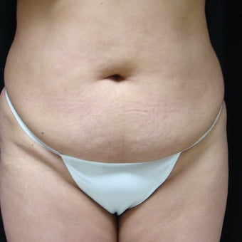45-54 year old woman treated with Mini Tummy Tuck before 1944537