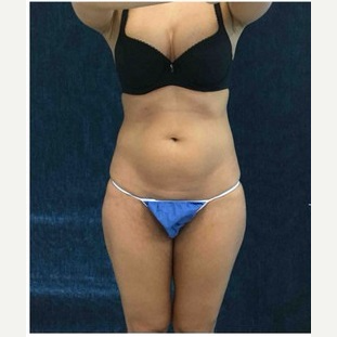 25-34 year old woman treated with CoolSculpting before 3181811
