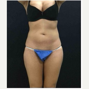 25-34 year old woman treated with CoolSculpting after 3181811