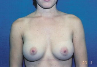 Breast Augmentation after 260787