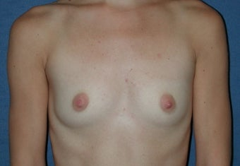 Breast Augmentation before 260787