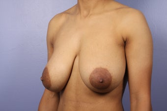 42 yr old Breast Reduction before 1013909