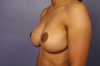 42 yr old Breast Reduction after 1013909