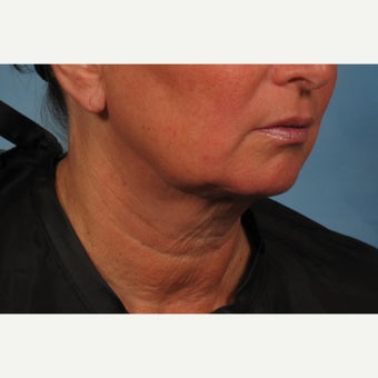 55-64 year old woman treated with Non-Surgical Neck Lift - Precision TX Laser Neck Lift before 2015572