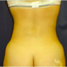 Slim Lipo after 3056214