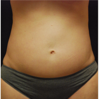 45-54 year old woman treated with CoolSculpting after 3500989