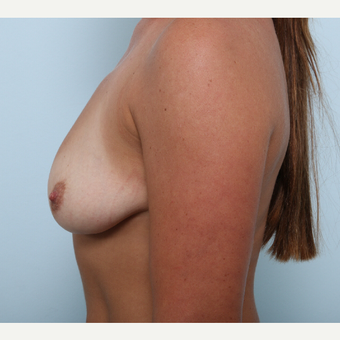 Breast Augmentation before 3345534