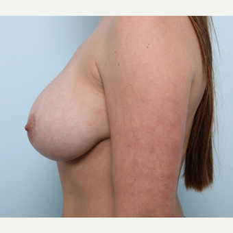 Breast Augmentation after 3345534