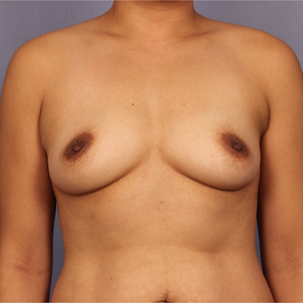 Late 30s female, Breast Augmentation before 3293240