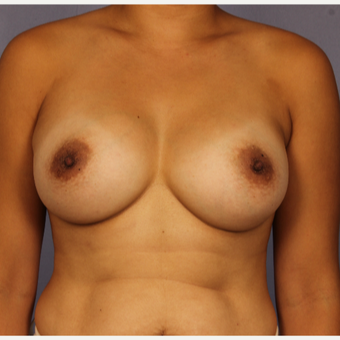 Late 30s female, Breast Augmentation after 3293240