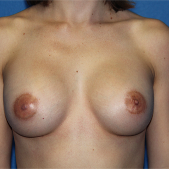 25-34 year old woman treated with Breast Augmentation after 3092001