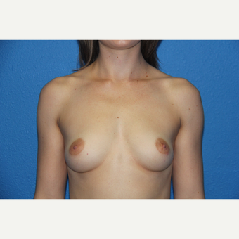 25-34 year old woman treated with Breast Augmentation before 3092001