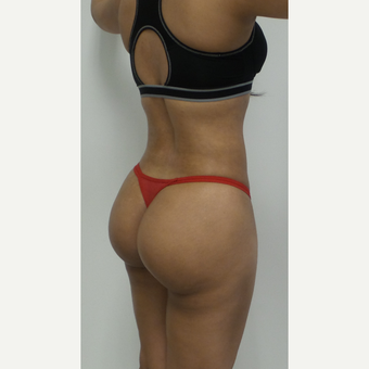 25-34 year old woman treated with Brazilian Butt Lift after 2814269