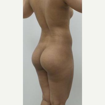25-34 year old woman treated with Brazilian Butt Lift before 2814269