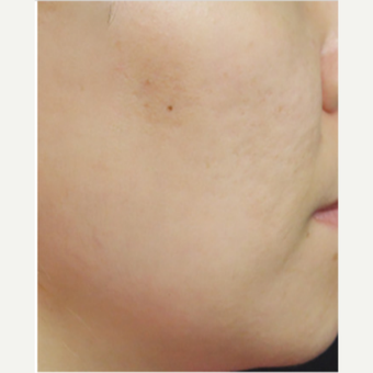 25-34 year old woman treated with Infini RF after 3669029