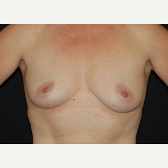 35-44 year old woman treated with Breast Implants before 3650763