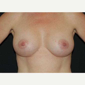 35-44 year old woman treated with Breast Implants after 3650763
