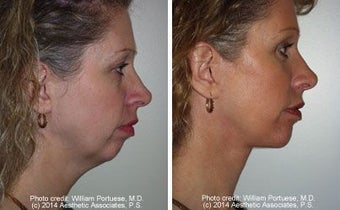 Facelift with Chin Implant, Dermabrasion before 91416
