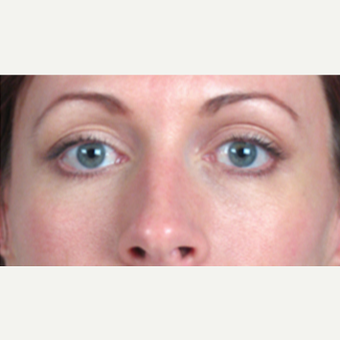 35-44 year old woman treated with Eyelid Surgery after 3213249