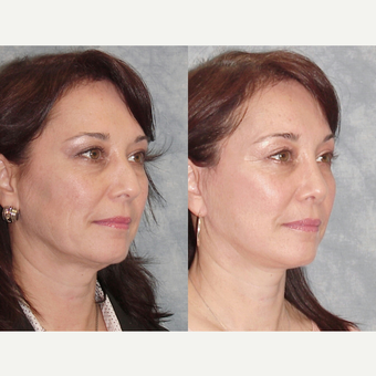 45-54 year old woman treated with Rhinoplasty after 3224112