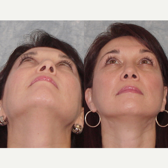 45-54 year old woman treated with Rhinoplasty before 3224112
