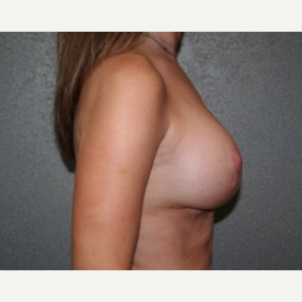 25-34 year old woman treated with Breast Lift after 3339939