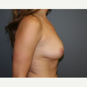 25-34 year old woman treated with Breast Lift before 3339939