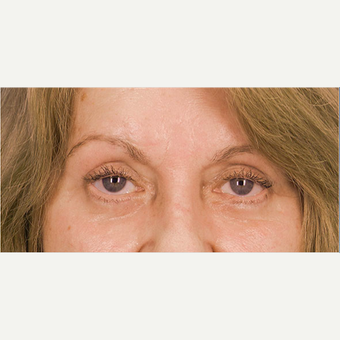 Eyelid Surgery after 3126864