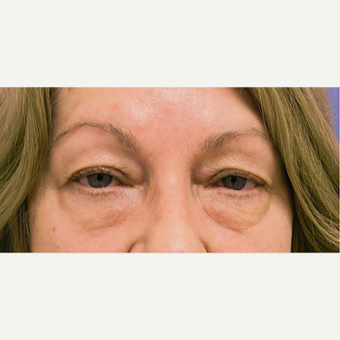 Eyelid Surgery before 3126864