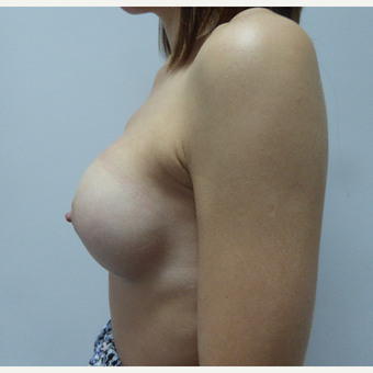 35-44 year old woman treated with Breast Implants after 3375709