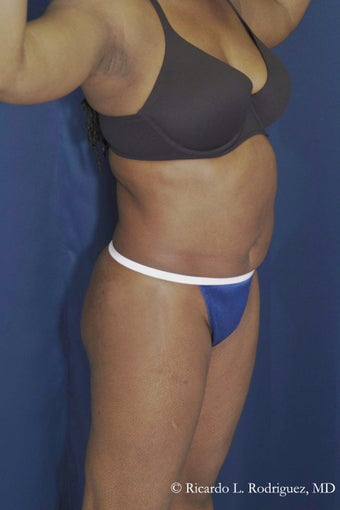Abdominoplasty 605933