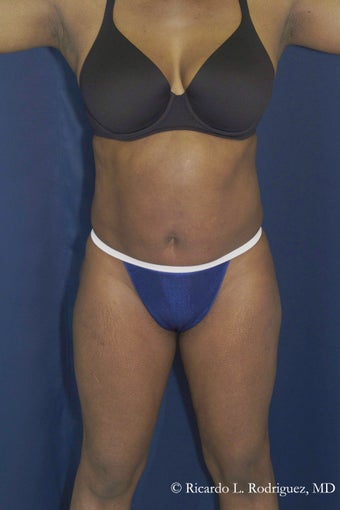 Abdominoplasty before 605933