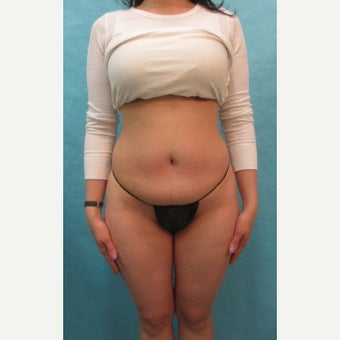 25-34 year old woman treated with Tummy Tuck before 2572462