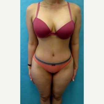 25-34 year old woman treated with Tummy Tuck after 2572462